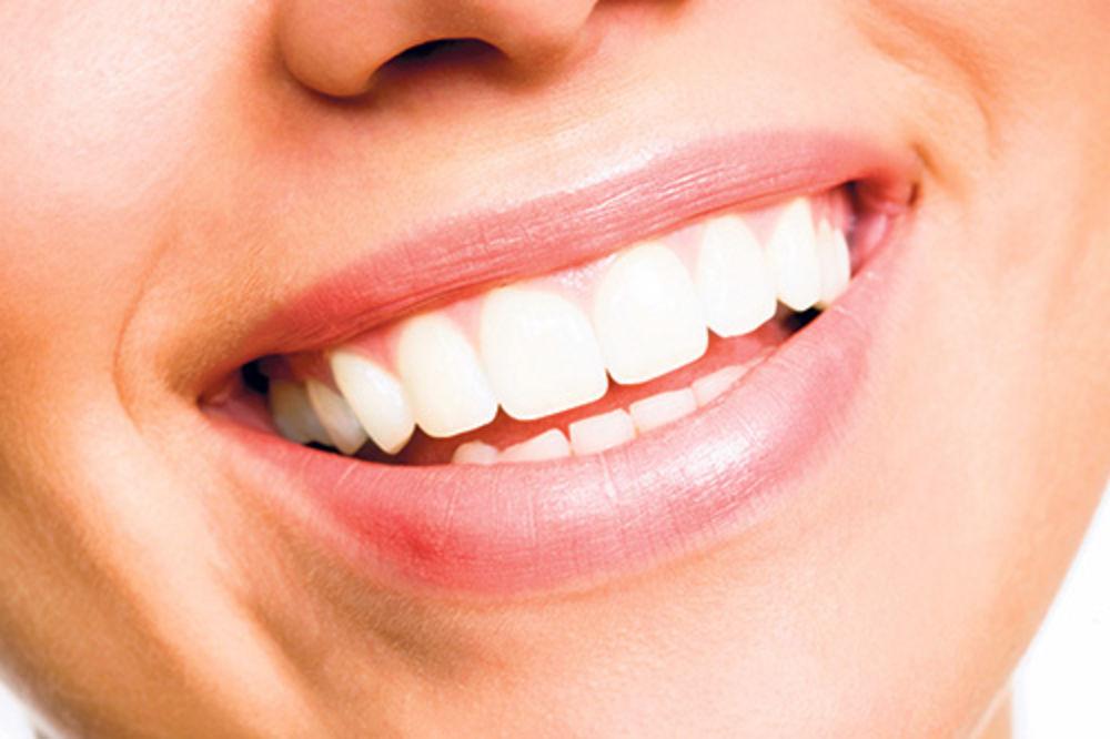 ZDRAVO I EFIKASNO: Kako da izbelite zube za samo pet minuta?