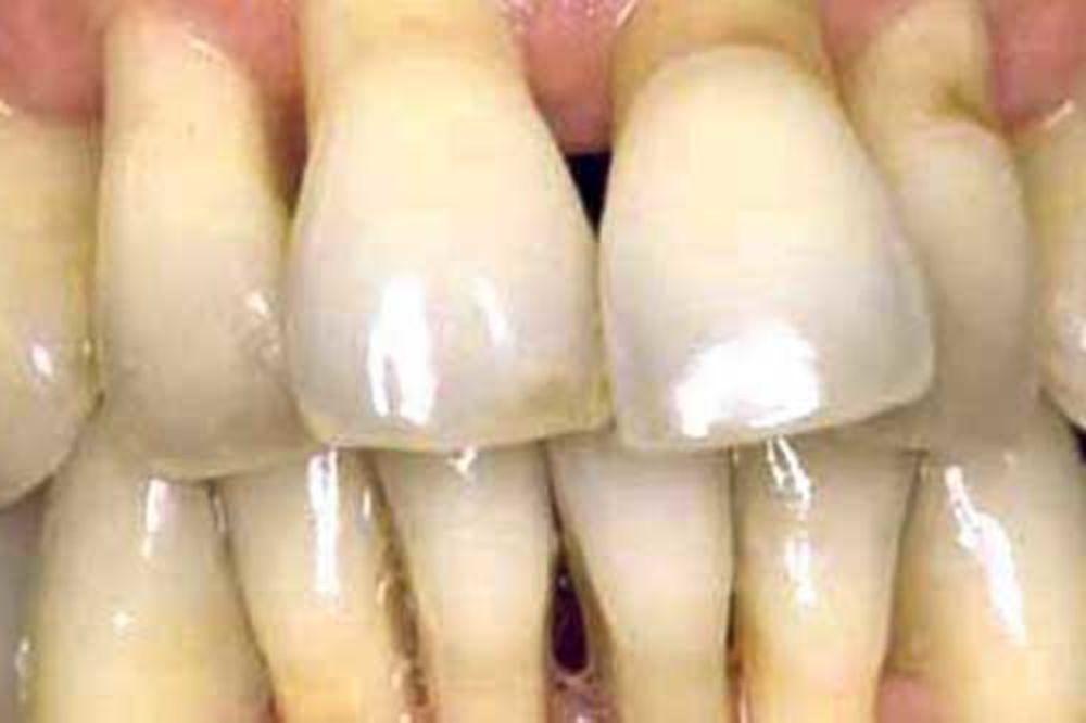 Ispadaju mi zubi, šta da radim?