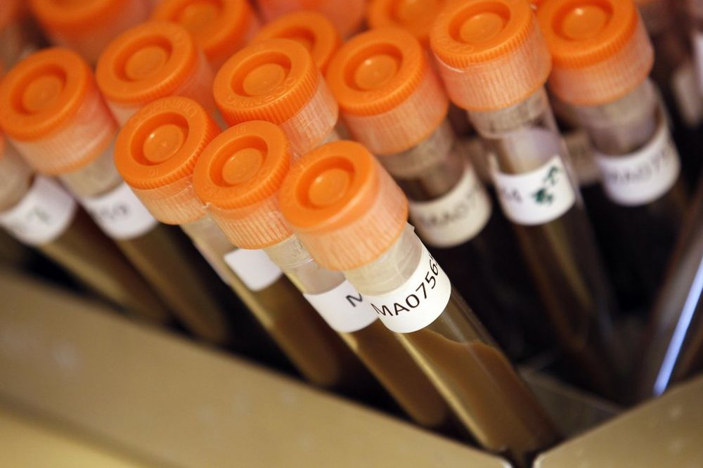 BIVŠI VELJIN SAVETNIK ZAPOSEO INSTITUT: Ostao sam sa hiljadama bakterija i mikroorganizama?!