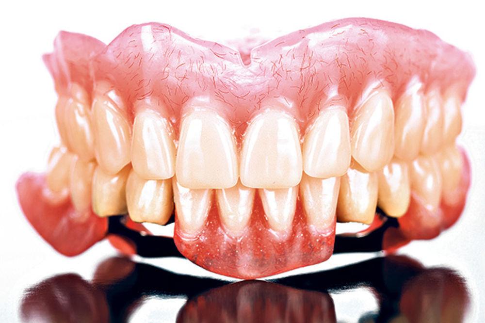 RAZVIO POSAO: Sa mrtvih skidao zlatne zube, pa ih prodavao!