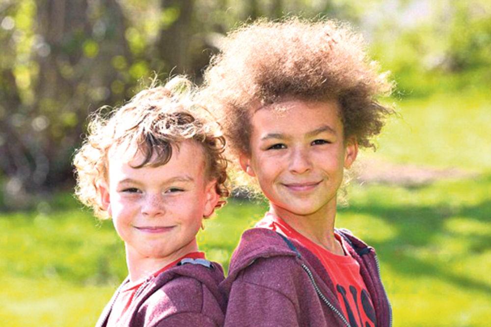 ŠANSE JEDNA U MILION: Najčudniji blizanci na svetu!