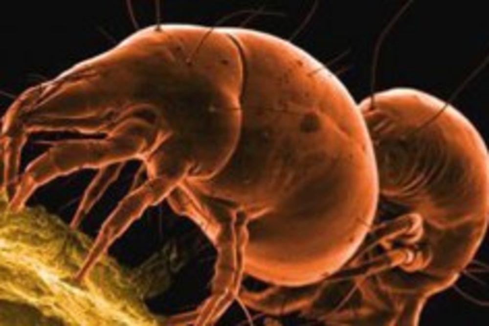 (VIDEO) JEZIVA BIĆA: 10 najodvratnijih parazita koji možda već žive u vama!