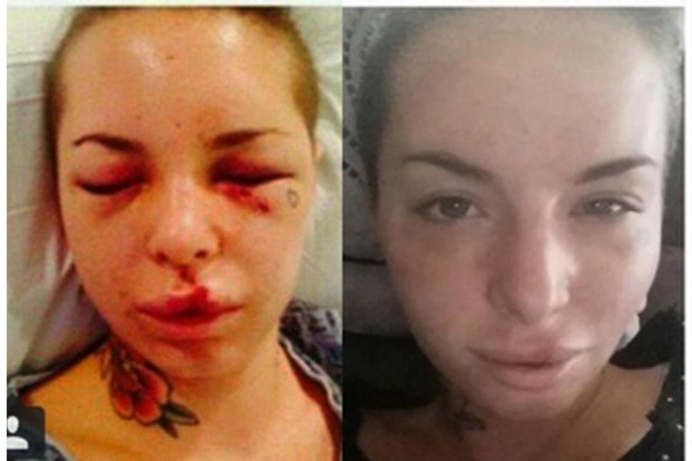 Mesec dana pošto je dečko brutalno pretukao: Ovako sad izgleda porno glumica