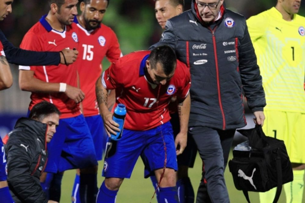 (VIDEO) OSTAO BEZ DVA ZUBA: Čileanac stradao u prijateljskom meču