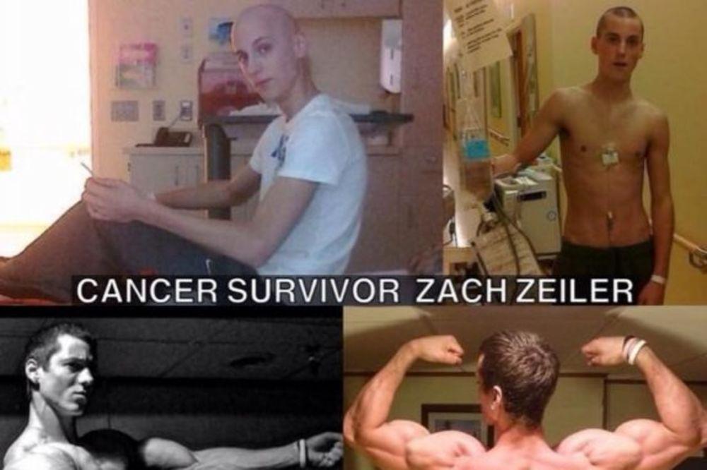Upoznajte Zaka (20) koji je pobedio rak i postao bodibilder!