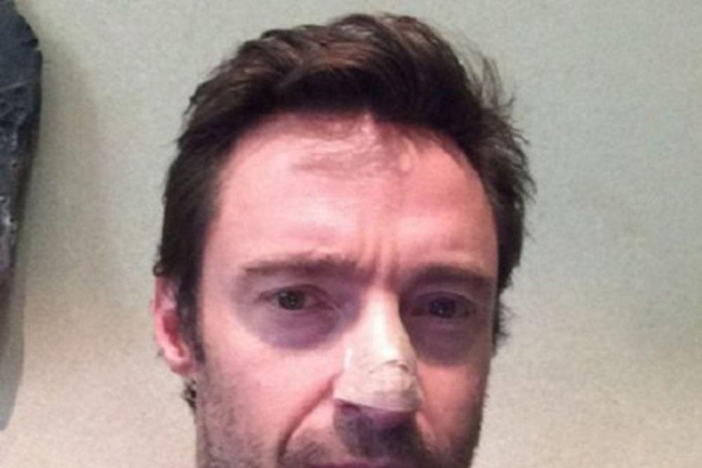 BOLEST SE VRATILA TREĆI PUT: Hju Džekmen opet ima rak kože!
