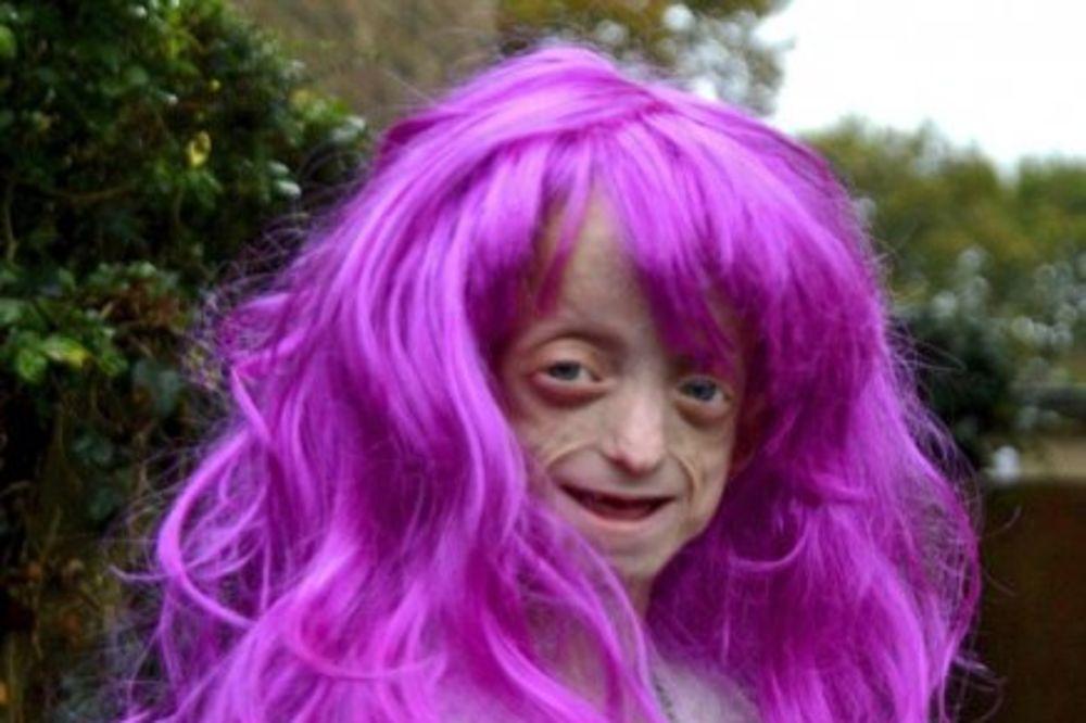 SRAMNO: Nastavnik naredio smrtno bolesnoj devojčici (11) da skine roze periku!