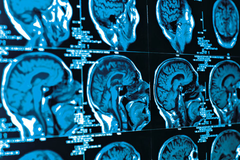TURBO-MOZAK: Molekul poboljšava pamćenje