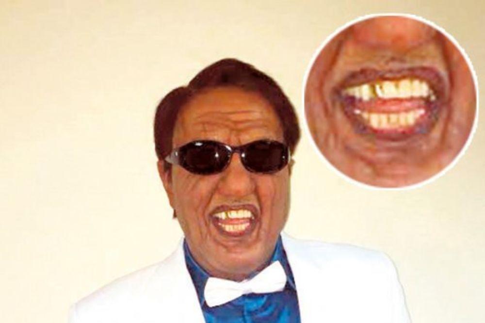 Tvoje lice zvuči poznato: Keba zbog Šabana ugradio zlatan zub!