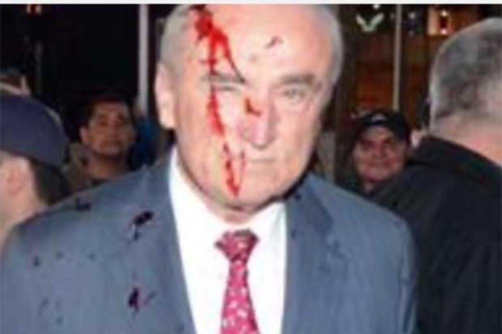 (VIDEO) RASNI PROTESTI U 120 GRADOVA SAD: Zalili lažnom krvlju prvog čoveka policije Njujorka