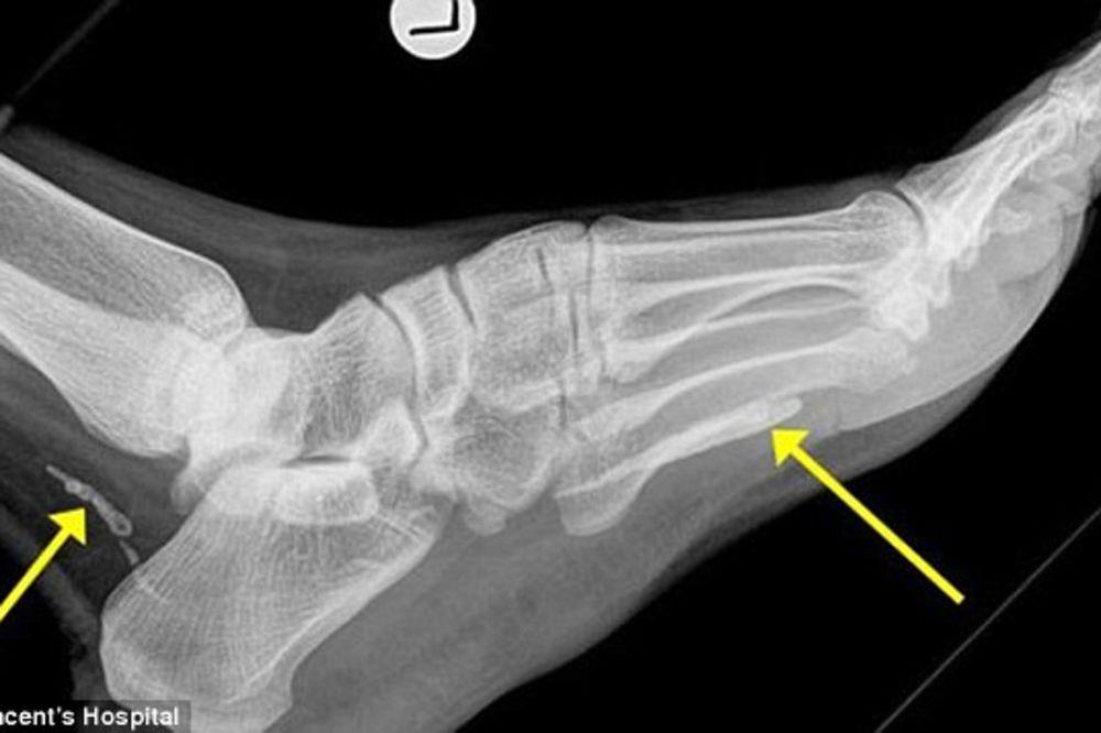 (VIDEO) Imao je bolove u stopalu 4 godine, a ono što je izašlo iz noge šokiralo je sve doktore