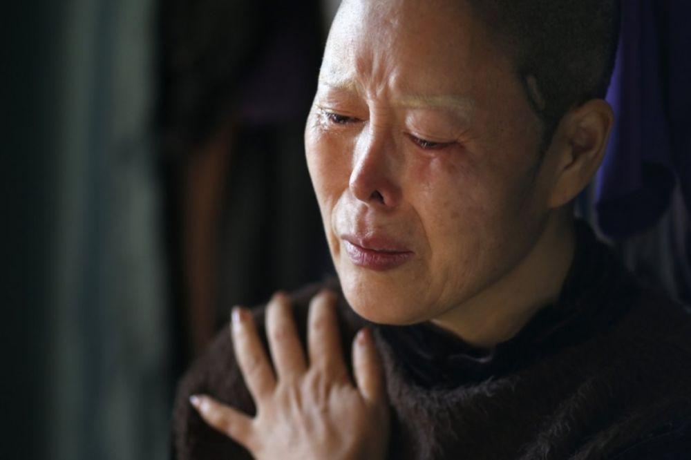 (VIDEO) Želja za veštačkom lepotom joj je uništila život: Ona ne može da zatvori oči, ali nema nazad