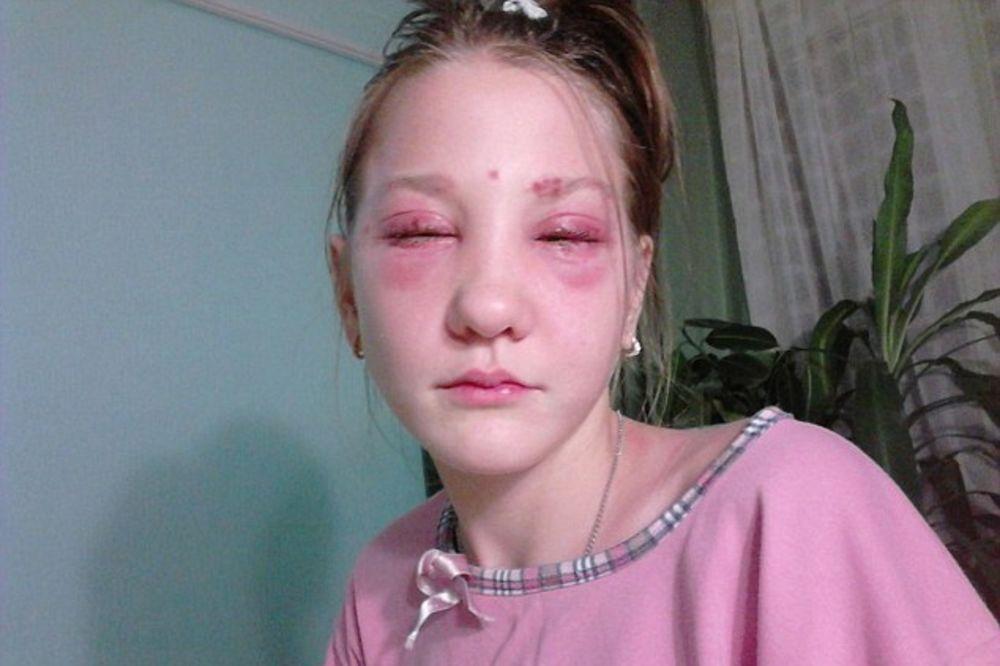 TINEJDŽERKE, OPREZ: Maša (13) bojila trepavice i obrve pa oslepela!