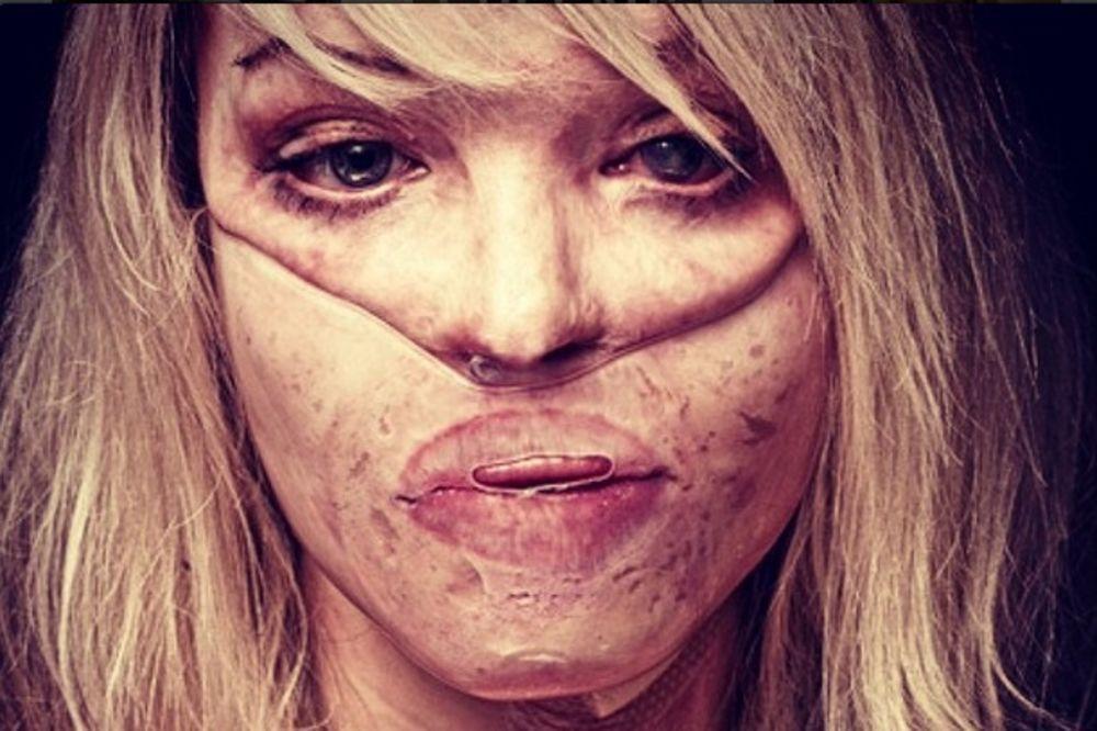 NEVEROVATNA HRABROST: Pretpela je silovanje i polivanje kiselinom, danas ima ćerku i poruku za sve