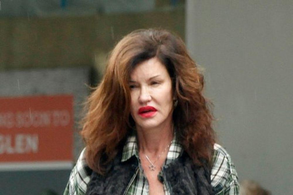 UNIŠTILA SE OPERACIJAMA: Nekada je bila najtaženija manekenka Holivuda a danas izgleda strašno