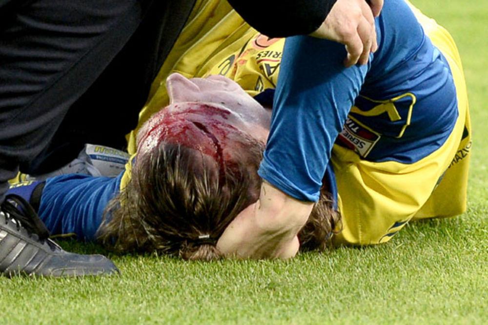 UZNEMIRUJUĆI VIDEO: Fudbaleru Kjeva pukla glava posle sudara sa Evrom