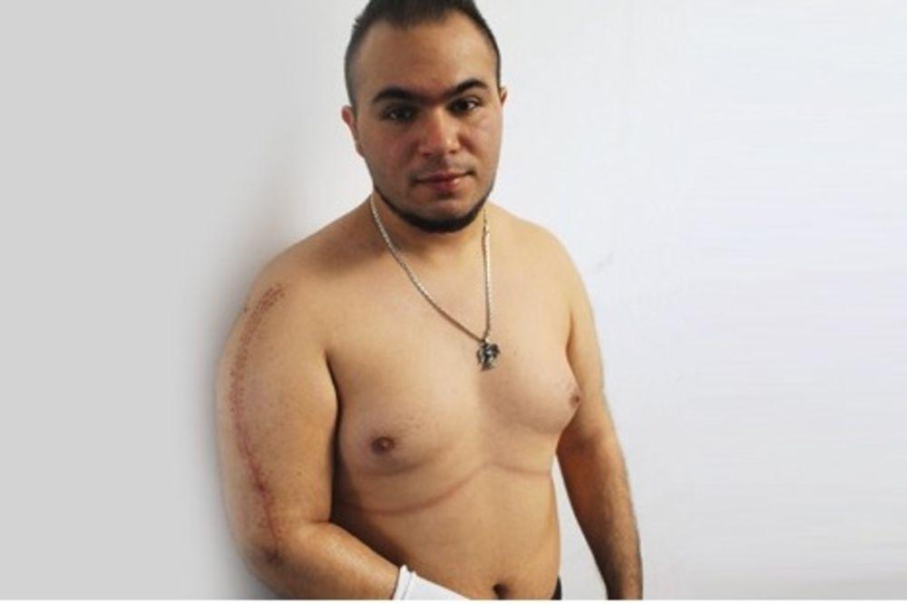 ALEKSANDAR (22) TUŽIO BEČKU POLICIJU: Policajac mu zavrtao ruku dok je nije slomio!