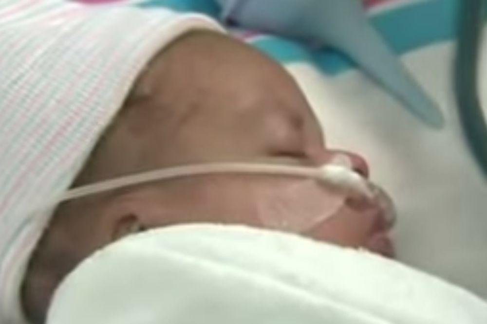 (VIDEO) OVAJ DEČAK JE ODUŠEVIO SVET: Evo zašto je mali Silas proglašen medicinskim čudom!
