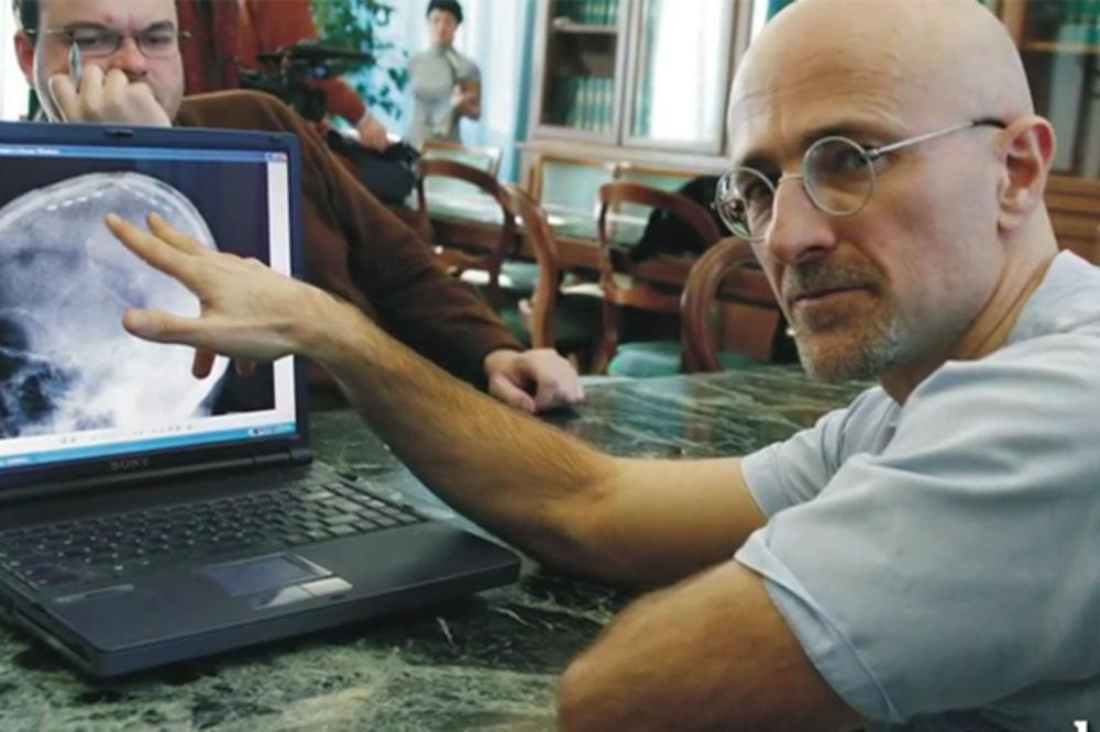 (VIDEO) SAMO ZA JAK STOMAK: Italijanski hirurg kaže da će presaditi glavu čoveku i da ima volontere!