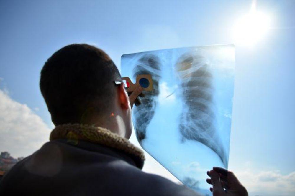 (FOTO) NIŠLIJE POBEDILE STRAH: Pomračenje gledali kroz CD, rendgenske snimke i varilačke maske!