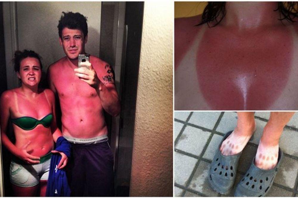 OVO MORA DA BOLI: 15 puta kad vam se smučilo sunce na odmoru