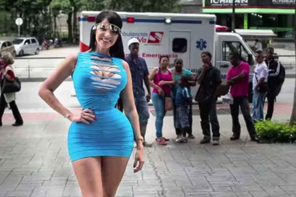 MISLI DA JE SEKSI, ALI JE ZOVU VANZEMALJAC: Imala 6 operacija struka da bi je muvali na ulici!