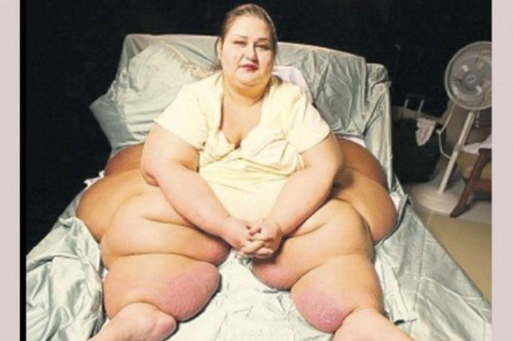 ONA JE BILA NAJDEBLJA ŽENA NA SVETU: Njena transformacija nakon gubitka preko 300 kg je šokantna