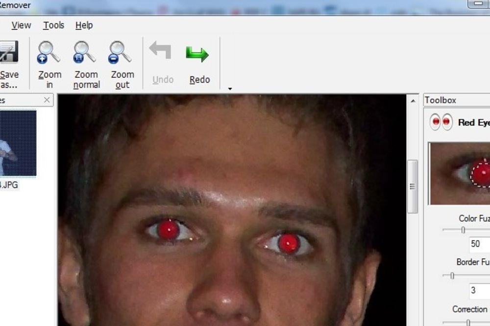 OVE INFORMACIJE MOGU DA VAM SPASU ŽIVOT: Ako vam je samo jedno oko crveno od blica, to znači...