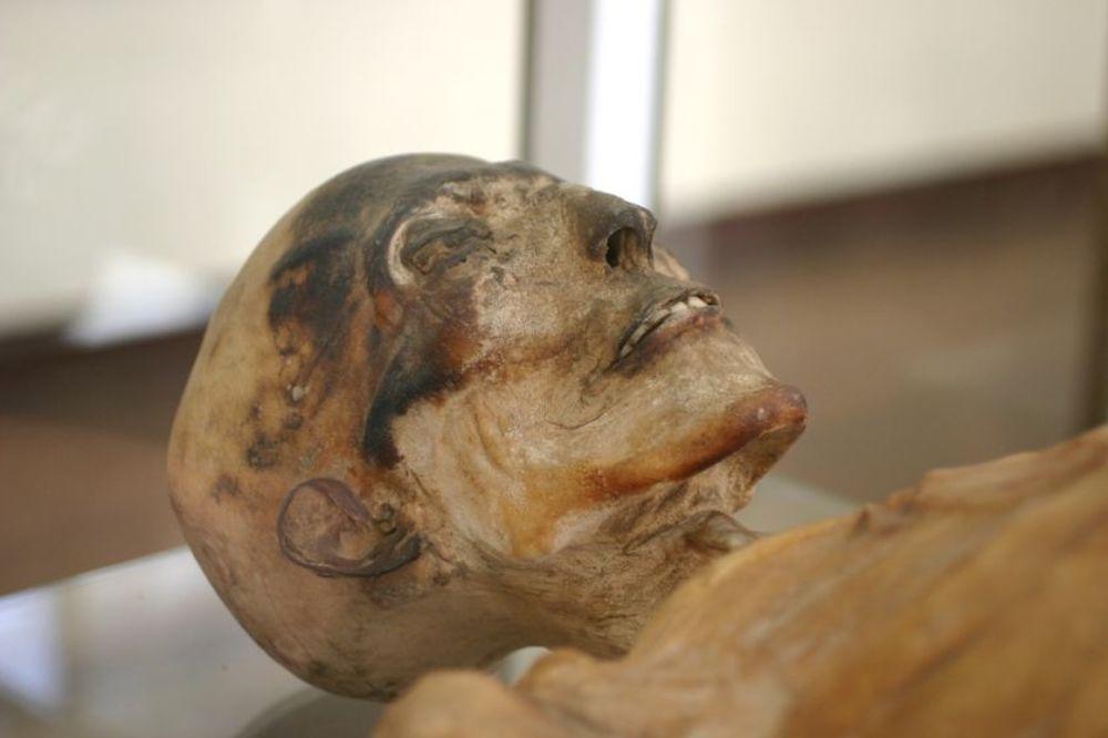 Mađarske mumije otkrivaju kako je tuberkuloza pokorila Evropu?