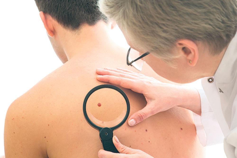AKCIJA OD 6. DO 8. MAJA: Besplatni pregledi za rano otkrivanje karcinoma kože