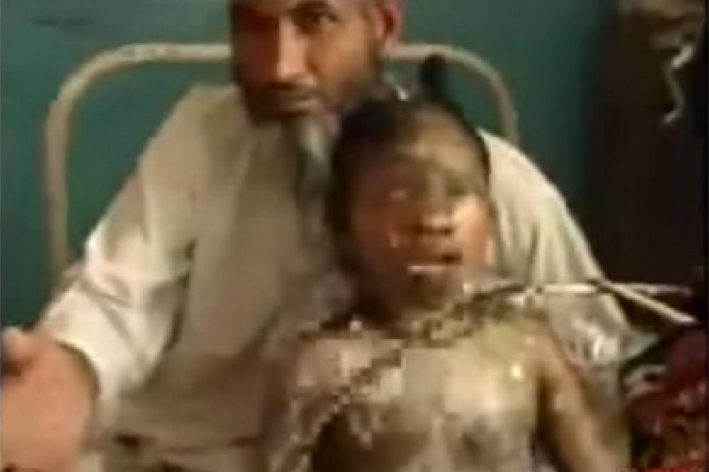 (UZNEMIRAVAJUĆI VIDEO) DA SE ČOVEK SLEDI: Ovu devojčicu su živu zapalili jer je stavila karmin