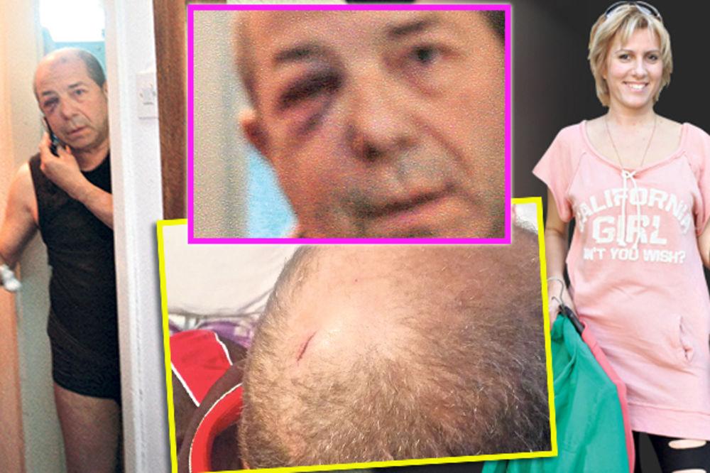 PREBIJEN HASAN DUDIĆ: Pocepali su mi glavu zbog Jelene Golubović!