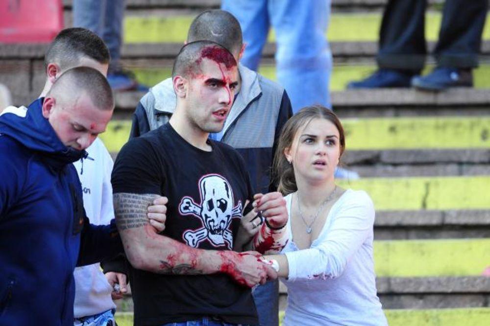CRNA SLIKA DERBIJA: Britanski mediji uz slike krvavih navijača, podsećaju da je ranije bilo i mrtvih
