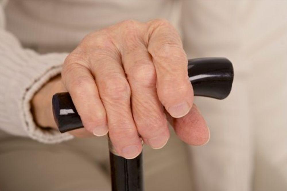 Biološke terapije nema za više od 30.000 pacijenata