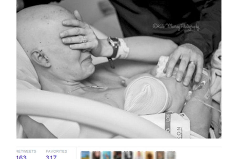 Fotografije koje su ganule svet: Majka obolela od karcinoma prvi put doji svog sina (FOTO)