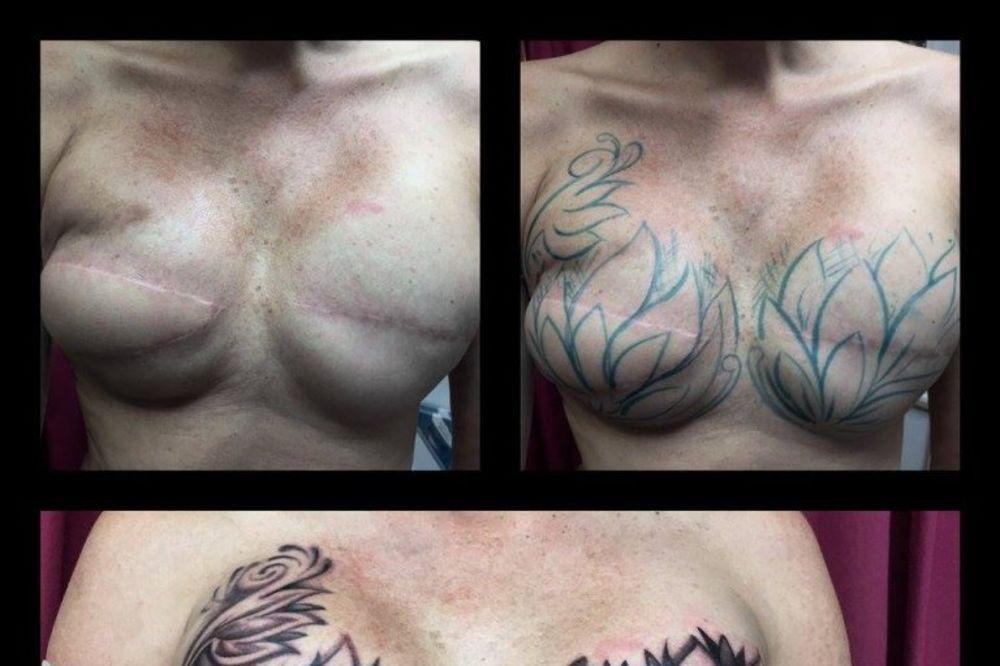 OŽILJCI, ALI SAMO NA SRCU: Tetovažom prekrila rezove od operacije grudi