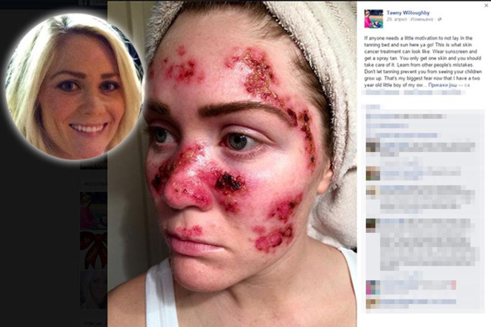 (FOTO) TONI (27) ŽIVI KAO U PAKLU: Pogledajte, dobila sam rak kože zbog solarijuma!