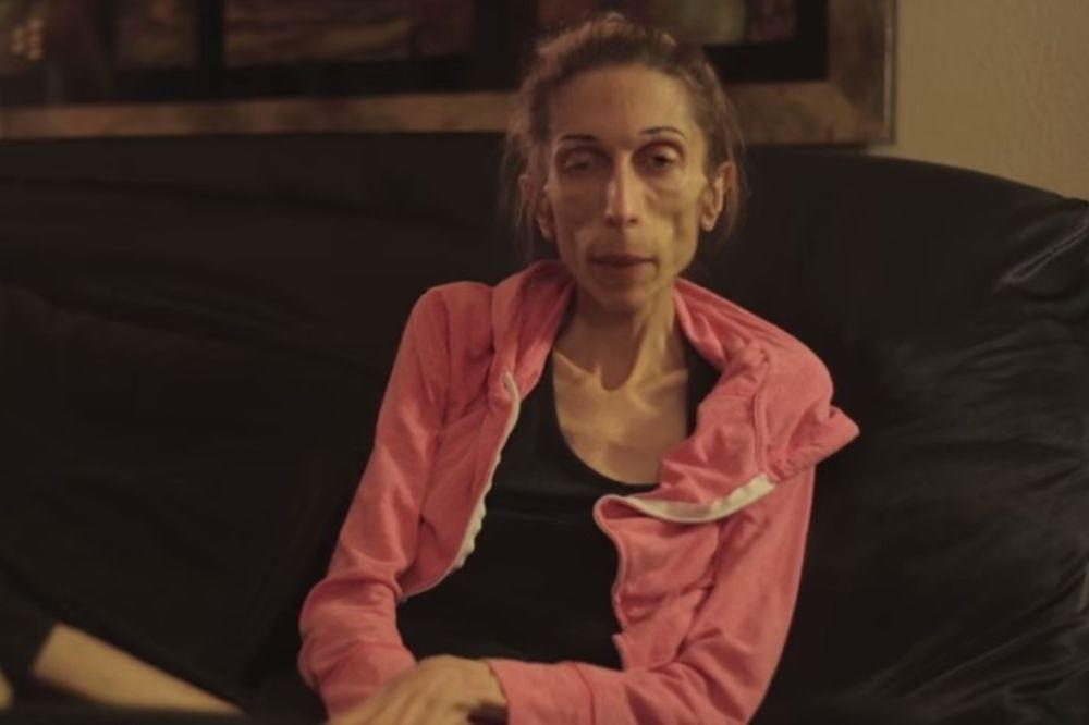 (VIDEO, FOTO) GLUMICA MOLI ZA POMOĆ: Ima 19 kilograma i nijedna bolnica neće da je leči