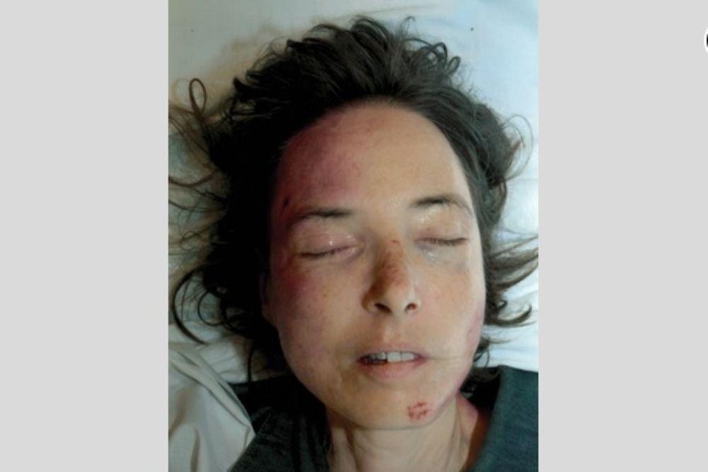 ŽRTVA POMAHNITLOG BOSANCA: Žena koju je Rizvanović pregazio u Gracu još nije identifikovana!