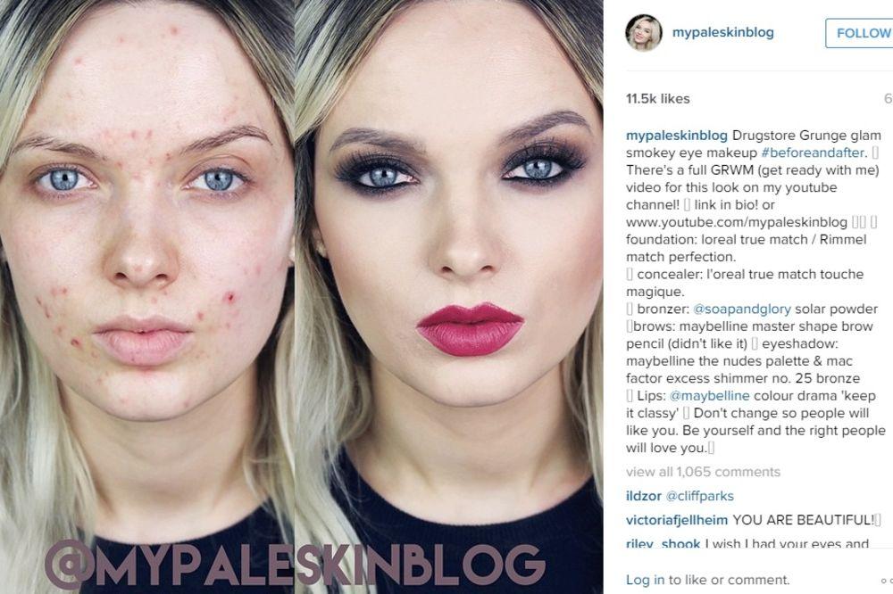 (VIDEO) Svi su joj govorili da ima odvratno lice, ali ona ima pravu poruku za njih