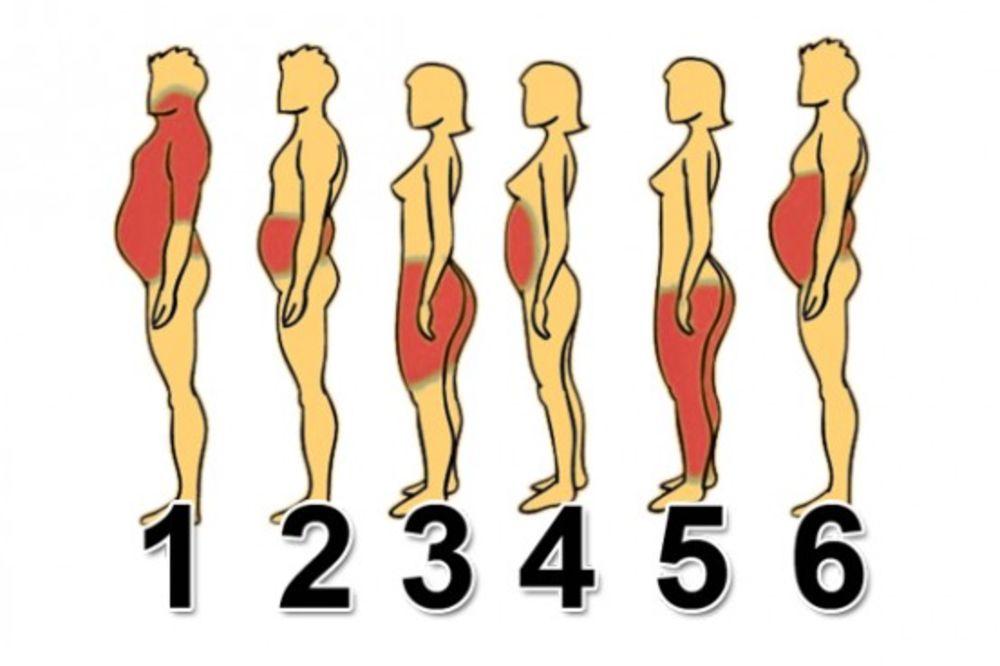 (FOTO) OTKRIJTE SAMI ZAŠTO STE DEBELI: Koji ste tip gojaznosti i kako da se rešite viška kilograma!