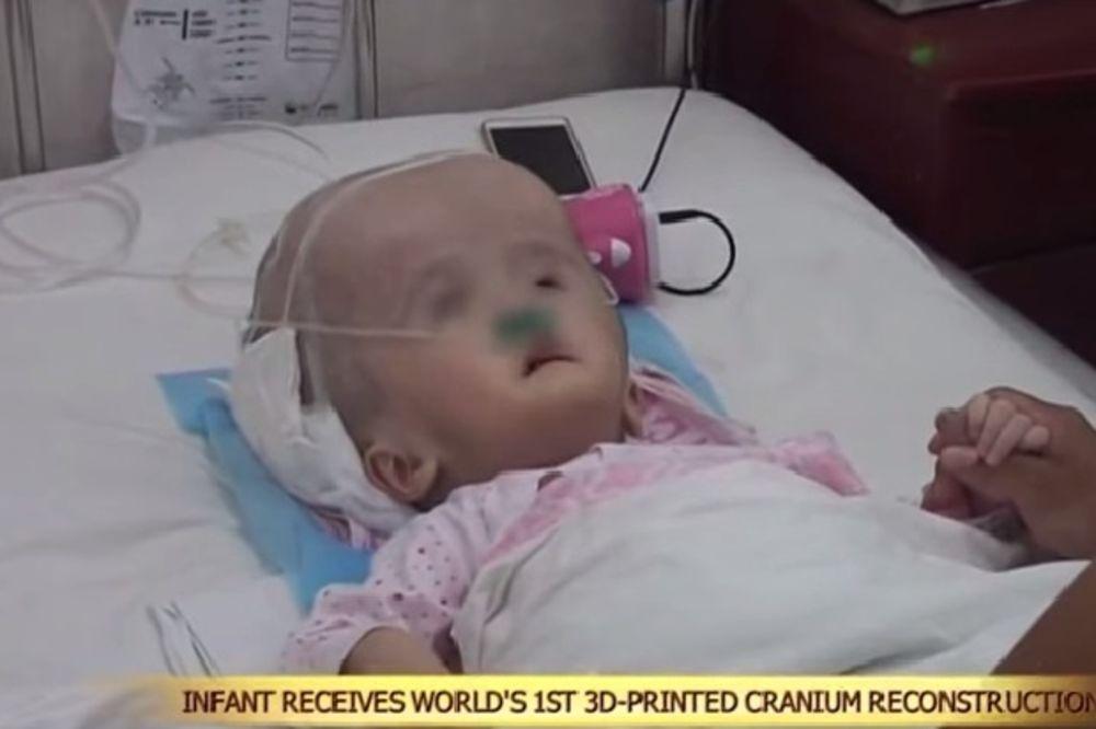 (VIDEO) PRVI PUT U ISTORIJI: Kinezi presadili devojčici (3) lobanju odštampanu 3D printerom!
