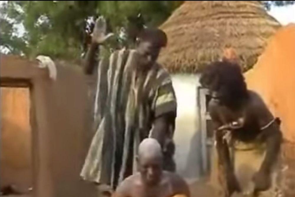 (VIDEO) ALTERNATIVNA MEDICINA: Pogledajte kako u Mozambiku leče glavobolju!