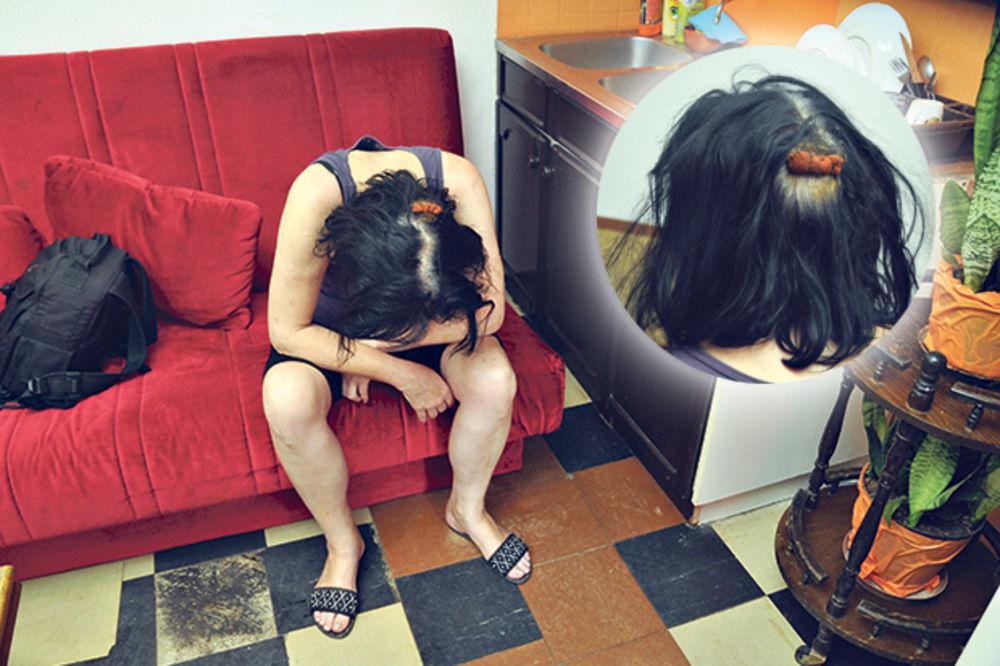 SPASLE JE KOMŠIJE: Očuh me sekirom krvnički udarao po glavi!