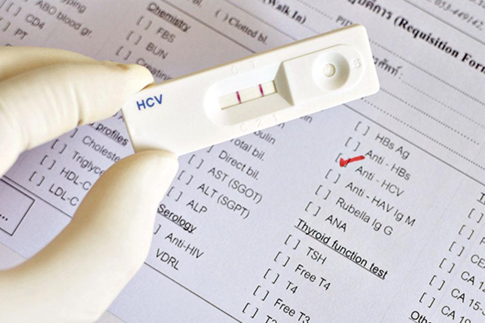 SELEKCIJA PACIJENATA: Teško do testiranja osoba na hepatitis