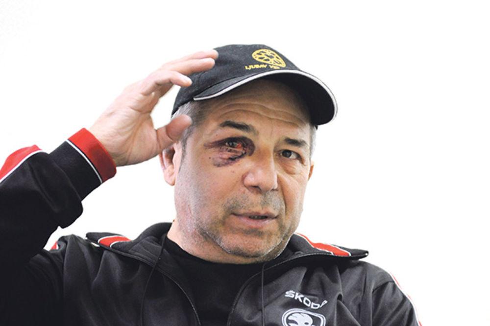 DRAMA: Hasanu Dudiću lekari jedva spasli oko