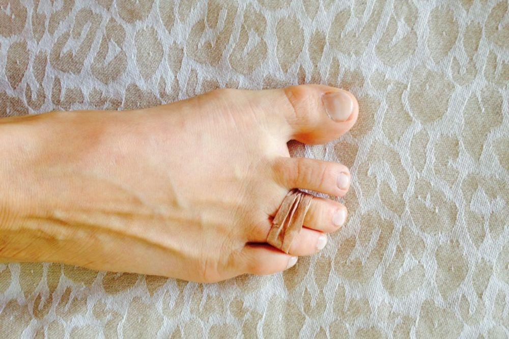 Svakog jutra stavlja gumicu oko dva nožna prsta. Razlog će vam spasti dan!