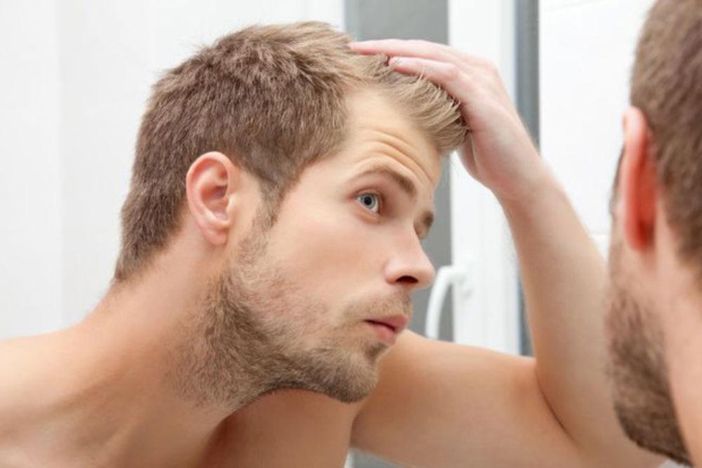 3 najčešće brige muškaraca o izgledu!