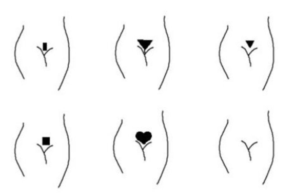 Saznajte Kakvu Intimnu Frizuru Muškarci Vole Da Vide Kod žena