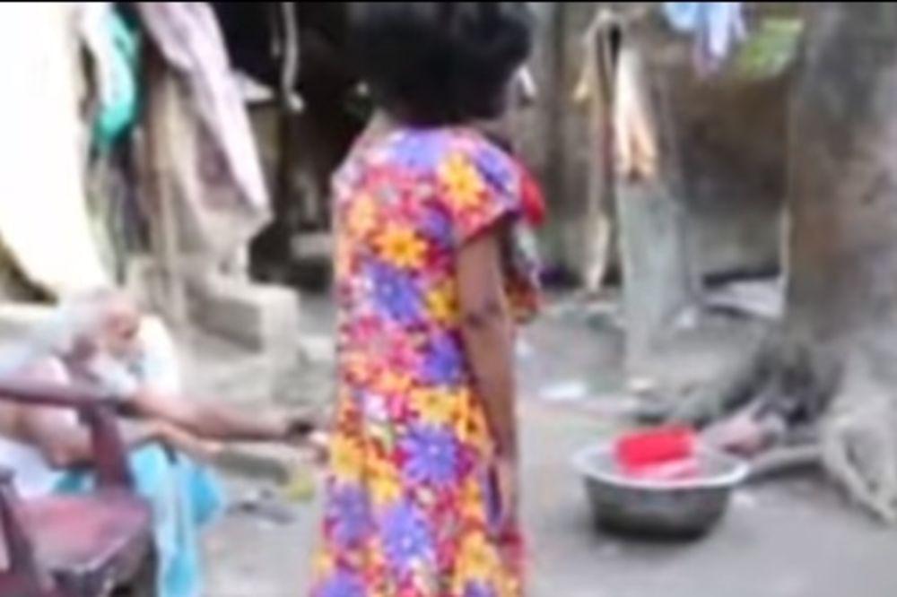 (VIDEO) UZNEMIRUJUĆI SADRŽAJ: Rođena je bez lica i nikada nije videla svet oko sebe